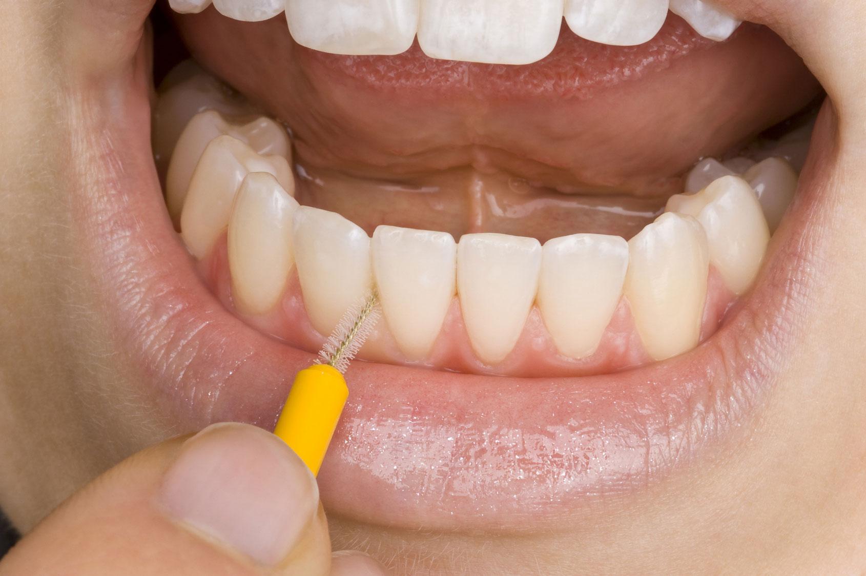 Reinigung von Zahnzwischenräumen