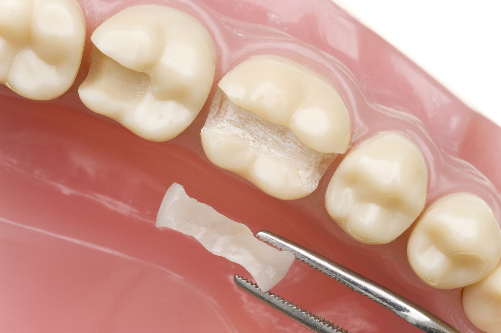 Kunststofffüllung beum Zahn