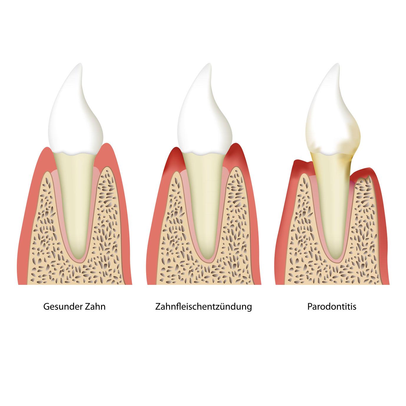 Parodontitis bei Zähnen