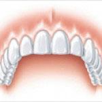 Fertig implantierter Schneidezahn