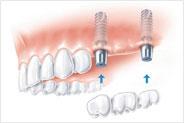 Implantierung von Backenzähnen als Brücke