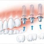 Implantierung einzelner Backenzähne