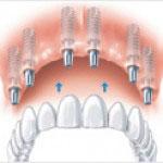 Zahnimplantat Oberkiefer